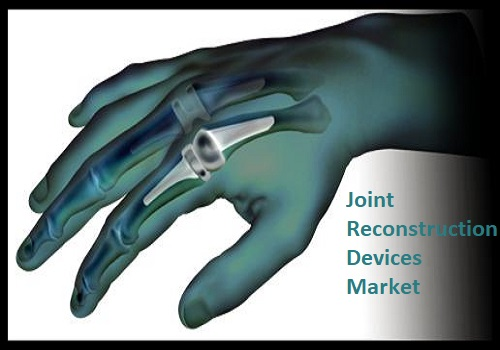 Joint Reconstruction Devices Market