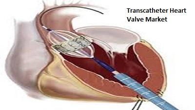 Transcatheter Heart Valve Market